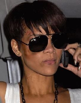 Rihanna is black and blue after the beating incident caused by her bf, Chris Brown